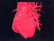 Médicos discutem imagem em 3D em tempo real