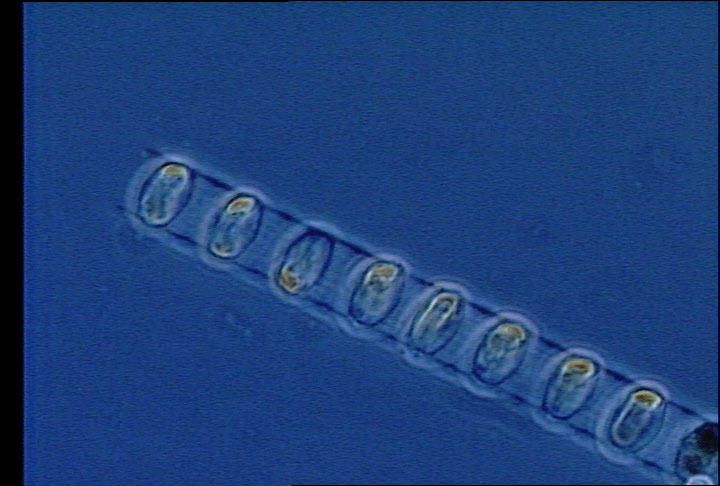 Microscope image of phytoplankton