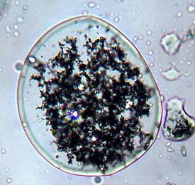 A microscopic bubble of emulsified iron.