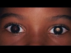 Anisometropia is a condition in which the eyes have unequal refractive power.