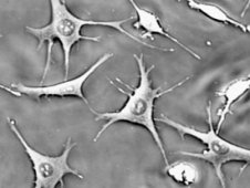 Osteocyte bone cell deformation