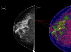comparison of two types of mammogram imaging