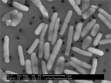 A scanning electron micrograph image of Pseudomonas aeruginosa cultured onboard shuttle mission STS-115, as part of the Microbe experiment at a magnification of 12,000X.