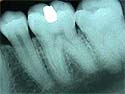 X-ray of a tooth
