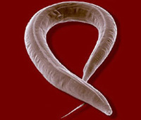 Photo of a C. elegan worm courtasy of Juergan Berger and Raplh Sommer, Max-Plank Institute for Developmental Biology