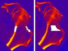 One mm thick sections through the mid frontal plane of the hip, showing regions of evaluation in white superimposed on a false color image of the quantitative computed tomography data. The left hand image shows the cortical region of the femoral neck and the right hand image shows the trabecular bone regions. (NASA)