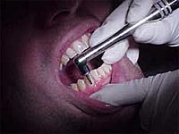 A dentist's drill in a mouth