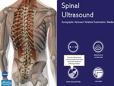 The opening 'Splash screen'' from the Spinal Ultrasound Just-In-Time training tool that launched in the fall of 2012 to aid crew training in ultrasound of the cervical and lumbar spine. The learner can select the buttons to launch the intensity of training required, from a simple familiarization to complete overview. (Dulchavsky)