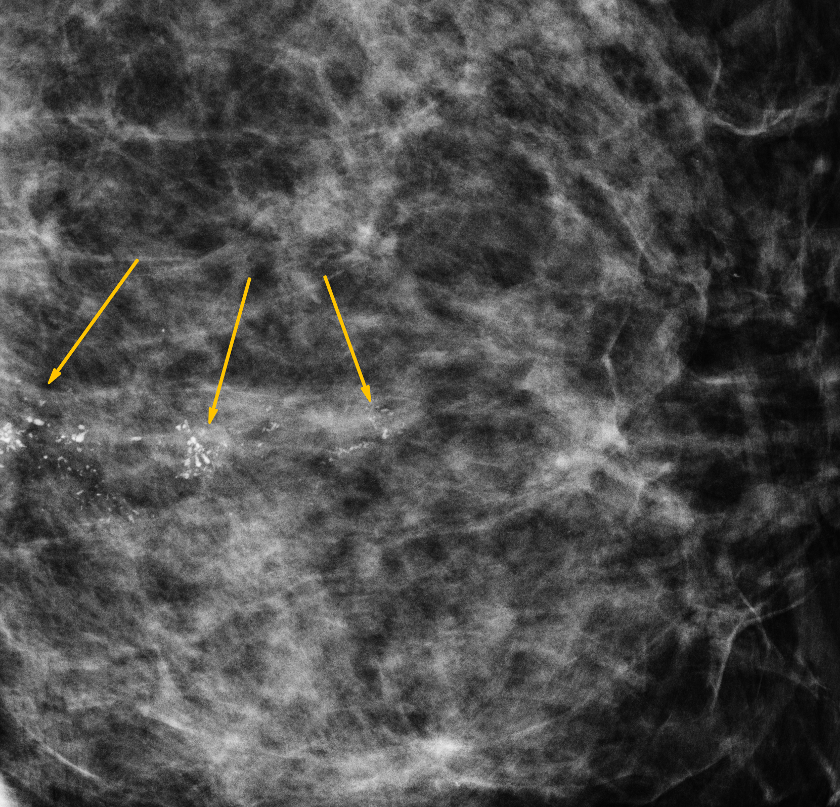 Image Processing Techniques Detect Cancer Earlier